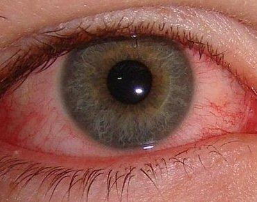 45cd0929d A descoberta veio através da observação de uma fotografia digital dos  minúsculos vasos sanguíneos localizados na parte de trás dos nossos olhos.